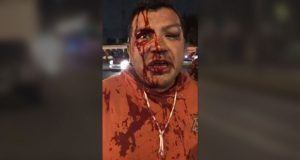 SSP suspende 31 policías por agresión a 2 reporteros en CDMX