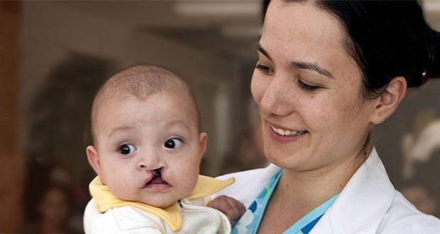 Realizarán cirugías gratuitas de paladar hendido en agosto