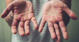 Sube a 41 mil contagios y 37 muertes por sarampión en Europa: OMS
