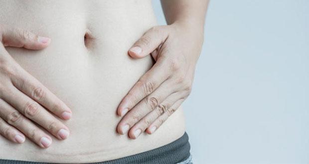 Herencia y uso de talco en bebés, causas de cáncer de ovario: IMSS