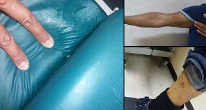 Acusan usuarios que camas del IMSS Metepec están infestadas de chinches