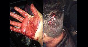 Taxistas golpean a conductor en la CAPU por creer que era Uber