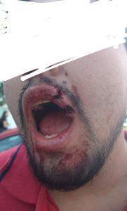 Líderes porriles de BUAP, al servicio de Esparza, golpean a alumno, acusan