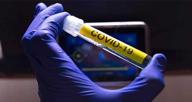 Alistan en EU pruebas finales de vacuna contra el Covid-19