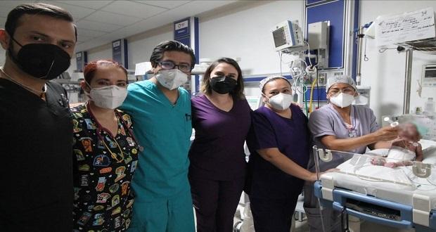 Hospital de la Mujer en Puebla hace cirugía cardiovascular