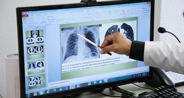 IMSS atiende daño pulmonar y dificultad respiratoria por Covid